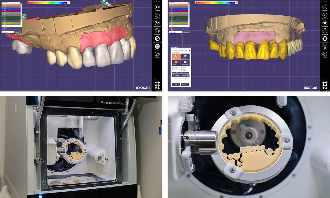 Изготавление любых видов безметалловых конструкций с применением CAD/CAM технологий