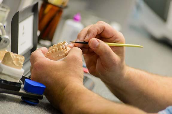 Изготовление высокоэстетичных реставраций – ювелирная и трудоемкая работа