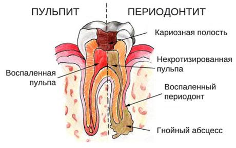 Лечение пульпита и периодонтита под микроскопом