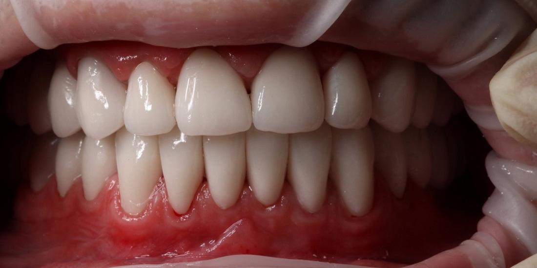 Достоинства керамики в стоматологии