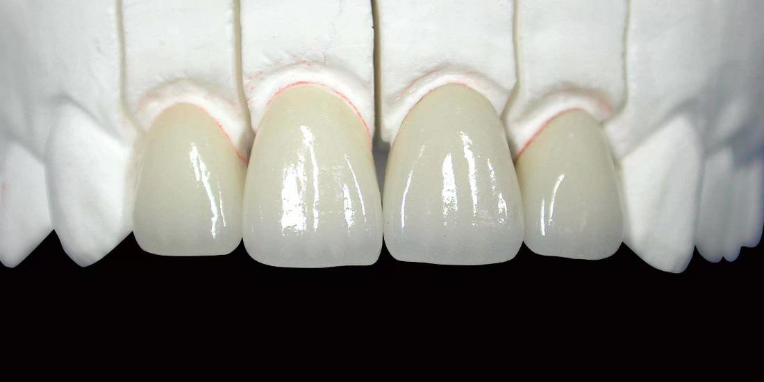 Передние зубы из керамики