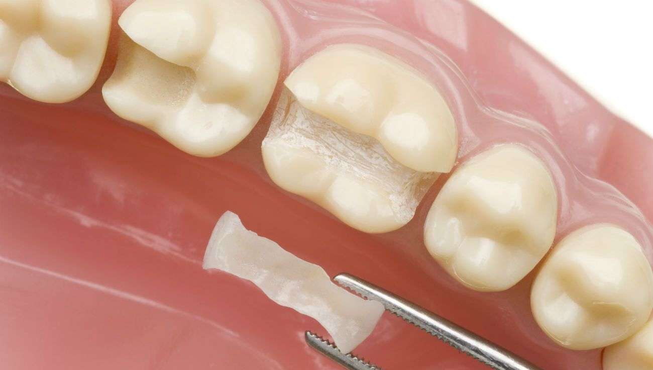 Стоматологические вкладки